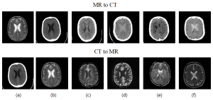 MR-to-CT & CT-to-MR