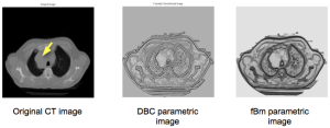 Tumor texture analysis - Fractal parametric images