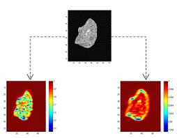 RF Ultrasound fractal maps